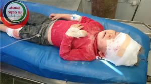 child victim al-baab massacre