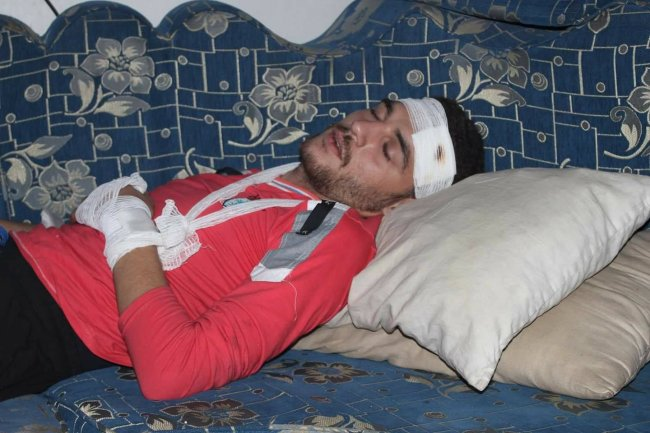 Correspondent of the Orient channel, Yaman al-Sayed, was injured in the air strike