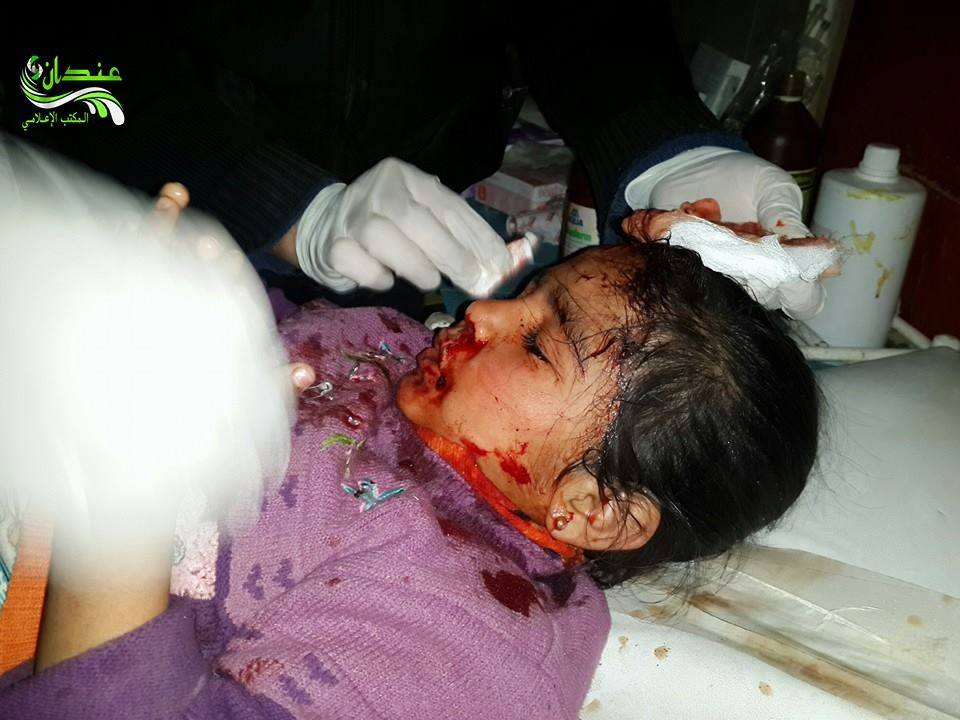 A young girl injured by the barrel bombing on Hayan