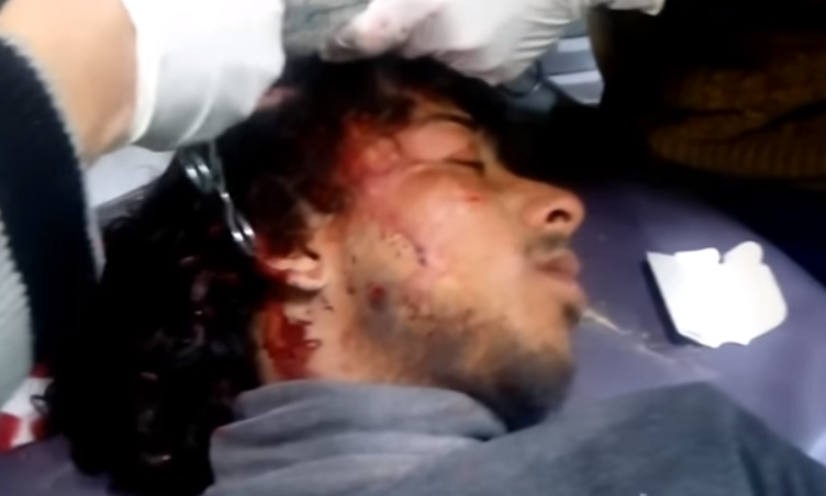 one of the victims of the Khan Sheikh bombing which took place on Saturday