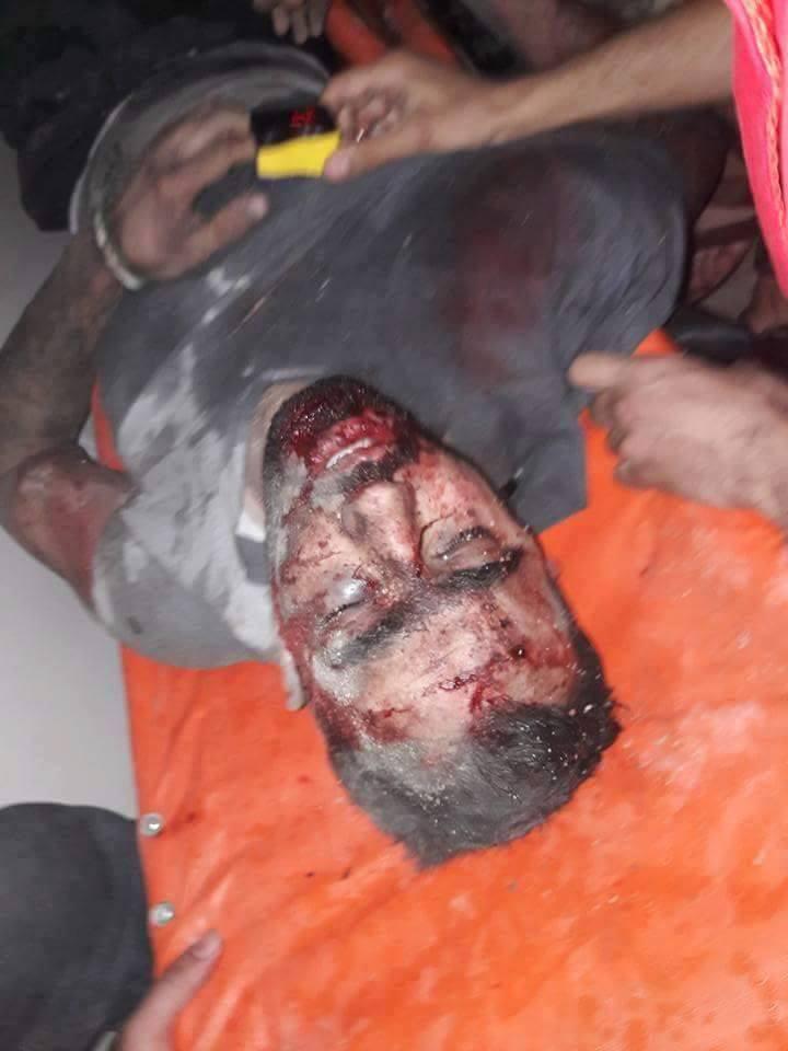 Hadi al-Abdullah was injured with moderate wounds.