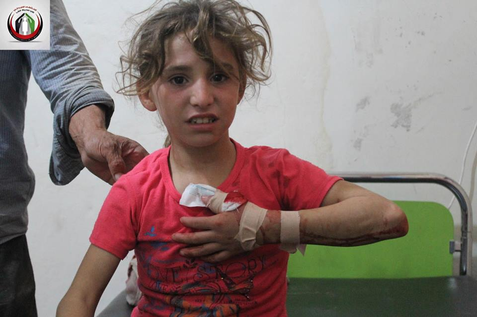 A young girl injured by arbitrary shooting