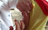 خمسة عشر طفلاً ضحايا للقاح الحصبة في جرجناز