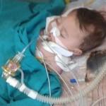 وفاة رضيع نازح بعد إصابته بالسحايا في حلب