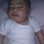 الحصار يستمر في حصد الضحايا بين الأطفال في دمشق وريفها