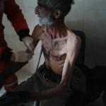 كشف بضحايا الحصار في مضايا والزبداني