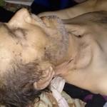 وفاة شخصين بسبب نقص الغذاء والدواء في مضايا وداريا