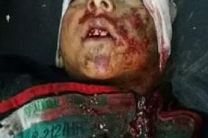 مقتل طفلين في استهداف بالقنابل العنقودية على كفر حمرة
