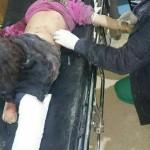 الميليشيات الكردية ترتكب مجزرة في ريف حلب