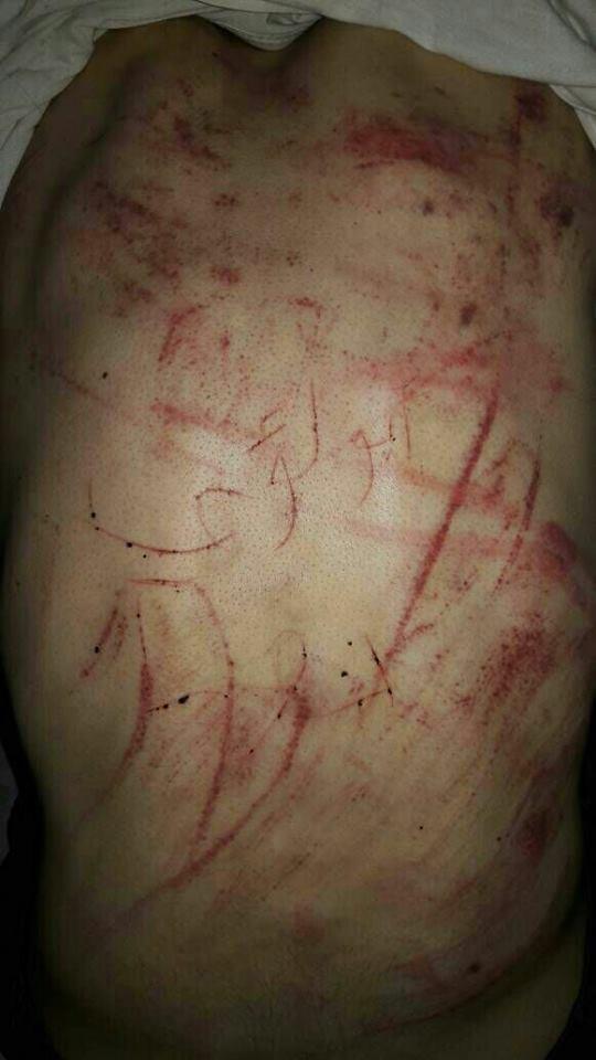 قام أحد الخاطفين بكتابة كنيته على ظهر المخطوف بأداة حادة